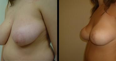 Κάθετη Μαστοπλαστική,6 μήνες μετά