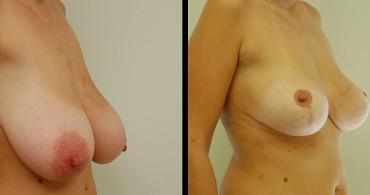 Κάθετη Μαστοπλαστική,1 χρόνο μετά