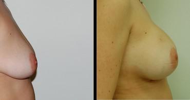 Τεχνική κάθετης μαστοπλαστικής, 6 μήνες μετά