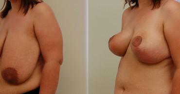 Κάθετη Μαστοπλαστική,1 μήνα μετά