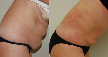 1 μήνα μετά λιποαναρρόφηση στην κοιλιά