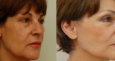 3 μήνες μετά από Mini Facelift,βλεφαροπλαστική και endotine