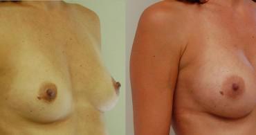 Στρογγυλό ένθεμα,πάνω από τον μυ,3 μήνες μετά