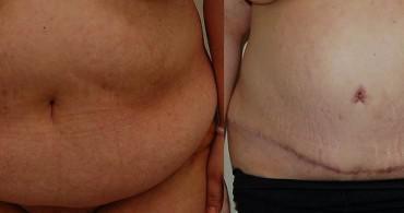 3 μήνες μετά από Κοιλιοπλαστική
