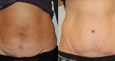 9 μήνες μετά από Κοιλιοπλαστική