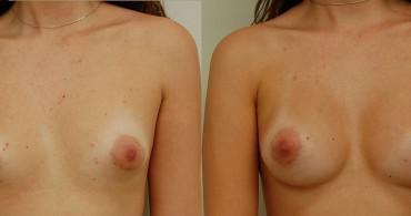 Αντιμετώπιση σωληνωτού μαστού.Ανατομικό ένθεμα,6 μήνες μετά