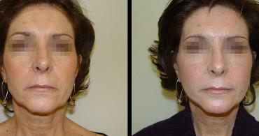 6 μήνες μετά από SMAS Facelift και Βλεφαροπλαστική