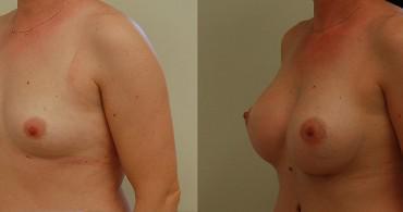 Στρογγυλό ένθεμα,πάνω από τον μυ,6 μήνες μετά
