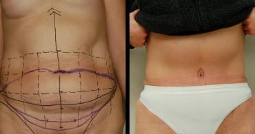 6 μήνες μετά από κοιλιοπλαστική