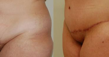 Κοιλιοπλαστική-1 μήνα μετά