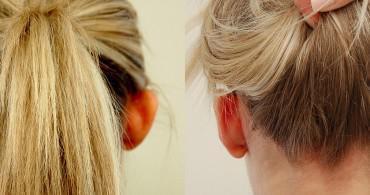 Διόρθωση υπερτροφικής κόγχης,δημιουργία ανθέλικας στο ένα αυτί