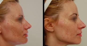 Αποτέλεσμα 1 μήνα μετά από 2 συνεδρίες χημικού peeling TCA