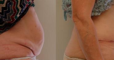 κοιλιοπλαστική 3 μήνες μετα
